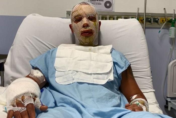 'Poderia ter sido fatal', diz prefeito de Osasco após sobreviver à explosão de fogueira em festa junina