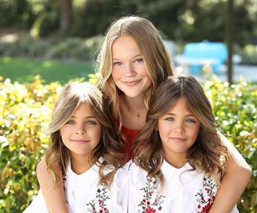 A História Das Irmãs Gêmeas Que Se Tornaram Modelos Famosas Ainda Crianças