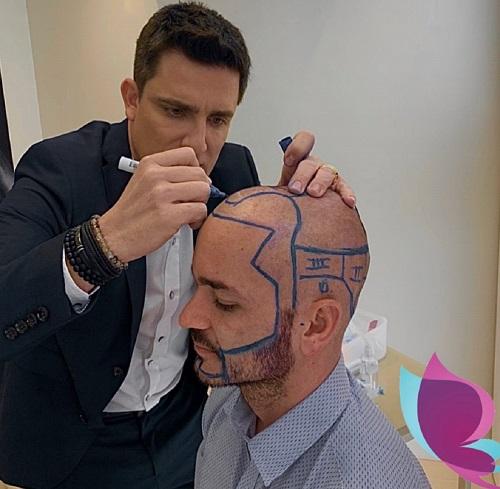 Transplante Capilar FUE: Clínica Harmonia, do Dr. Carmelo Occhipinti Filho, é referência nacional em recuperação dos cabelos