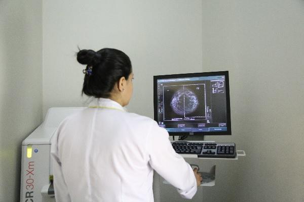 Fila Zero em Santana de Parnaíba para exames de mamografia